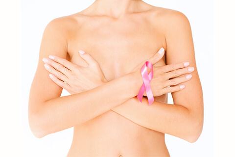 Reconstrucción de Mamas por Mastectomía